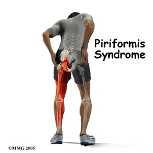 A man suffering from piriformis syndrome